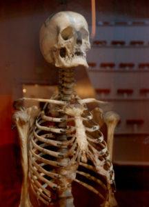 1901 Skeleton